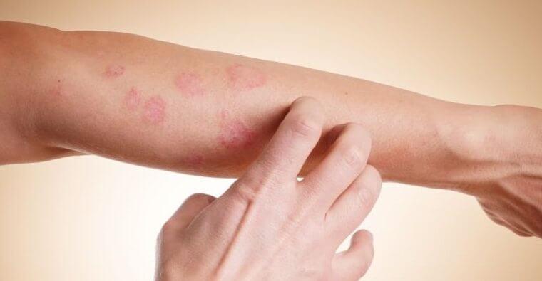 Łupież pstry – leczenie domowe, sprawdzone sposoby.