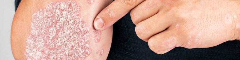 Objawy łuszczącej się skóry